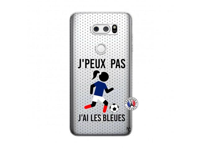 Coque Lg V30 Je Peux Pas J Ai Les Bleues Maillot