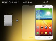 Film Protecteur LG L70 Anti-Reflet