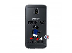 Coque Samsung Galaxy J3 2017 Je Peux Pas J Ai Les Bleues