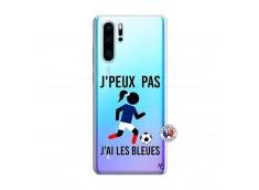 Coque Huawei P30 PRO Je Peux Pas J Ai Les Bleues